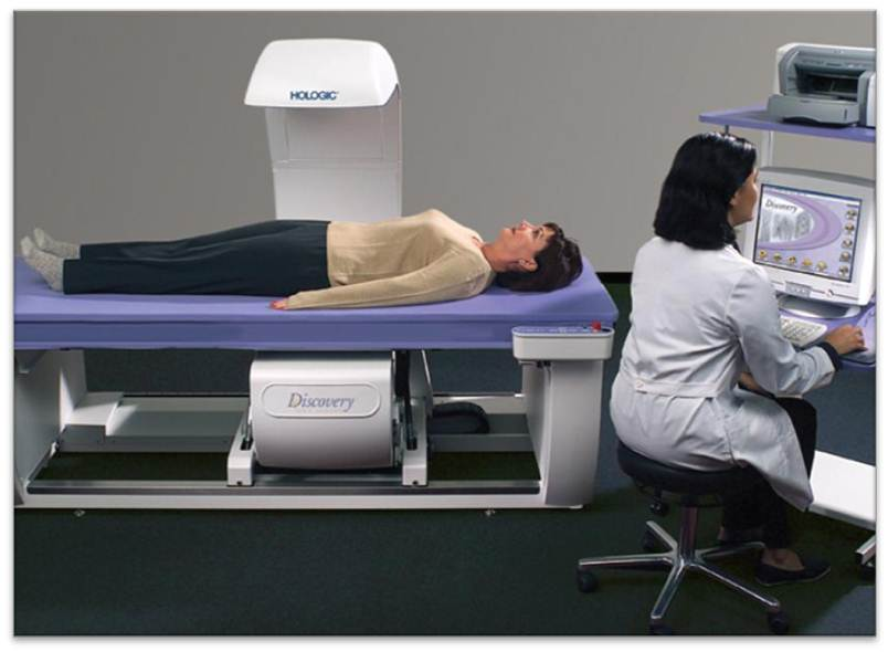 Bone Density Test and Cost - Reviews - Treato