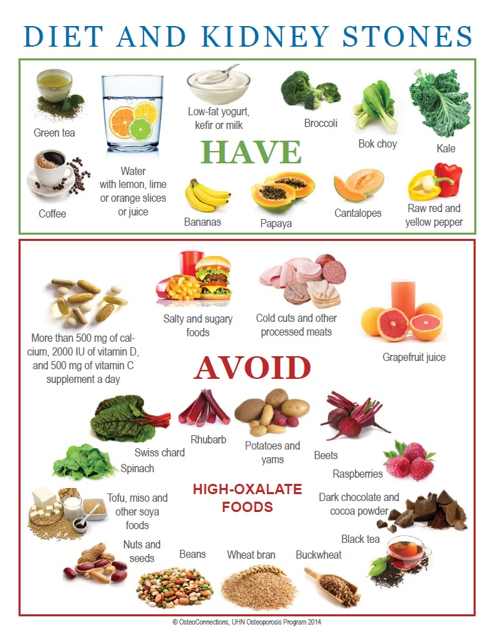 Foods That Must Not Feature on The Diet Chart of Patients with Kidney Stones