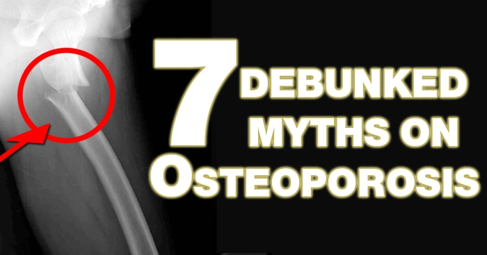 CoverPhoto Myths of Osteoporosis copy